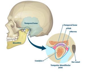 TMJ disorder diagram