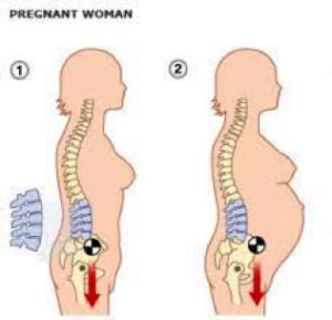 back curvature in pregnancy